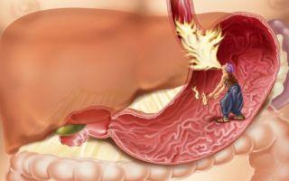 Сердечнососудистые заболевания – народная медицина / народные средства и методы от болезней сердца