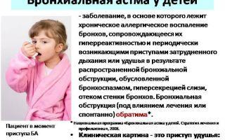 Бронхиальная астма у детей: симптомы и причины заболевания