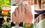 Подагра лечение народными средствами / народная медицина