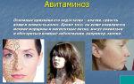 Авитаминоз человека – симптомы и лечение народными средствами