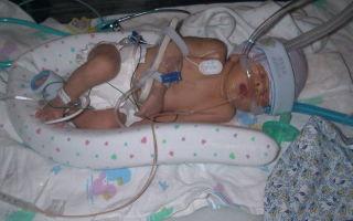 Травма рождения: страшный опыт для новорожденного