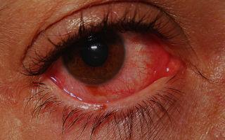 Острый катаральный конъюнктивит: симптомы