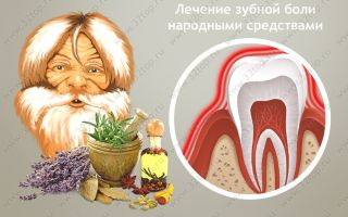 Зубная боль народные средства и рецепты / народная медицина