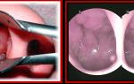 Как лечить аденоиды дома  —  аденоиды и  народная медицина