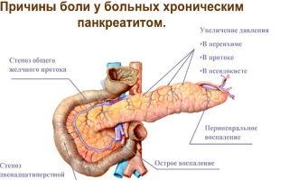 Панкреатит: причины, признаки и лечение