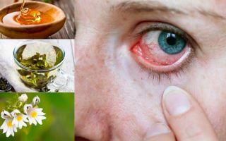 Глазные болезни у детей и взрослых – народные средства, народная медицина, народные рецепты