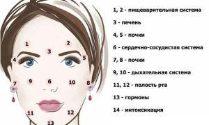 Прыщи и высыпания: психосоматика
