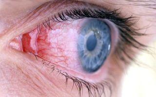 Конъюнктивит: симптомы и способы лечения, причины конъюнктивита
